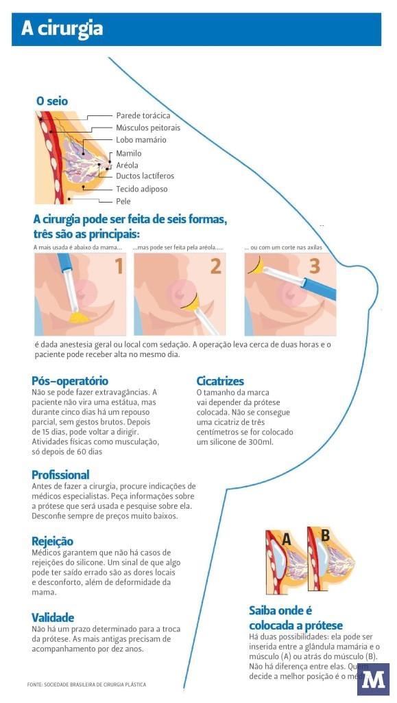 da2eb0073 Implante de silicone nos seios é a cirurgia plástica mais procurada em  Brusque